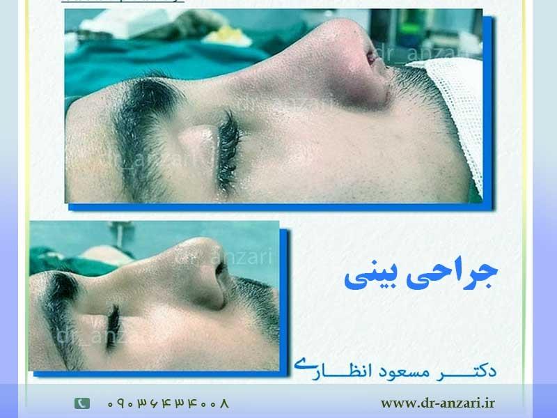 نکات مهم که باید قبل از عمل بینی بدانید