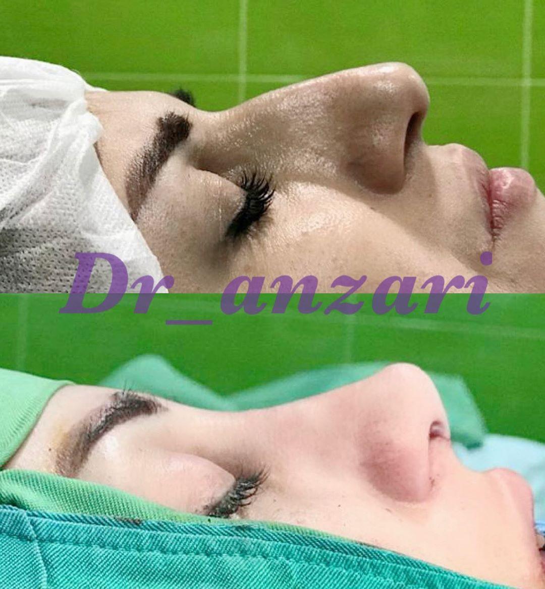 نمونه-جراحی-بینی