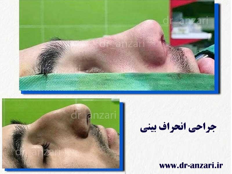 جراحی-انحراف-بینی-در-اردبیل