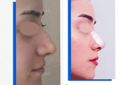بینی استخوانی عمل شده