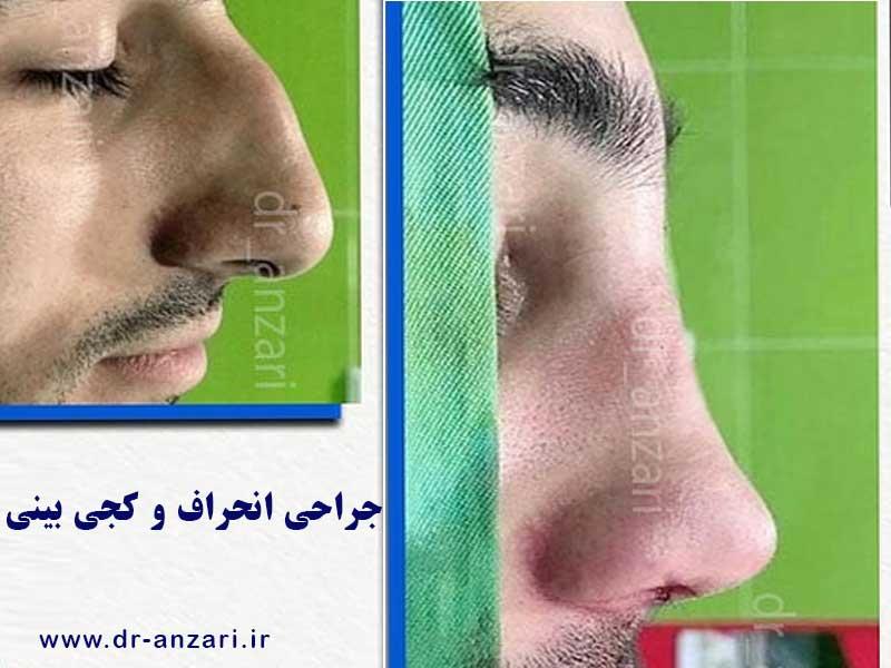 بینی قوز دار جراحی شده