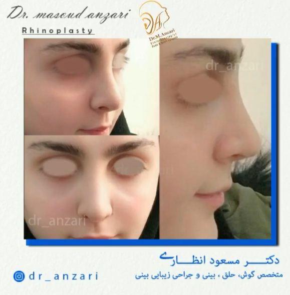دختری زیبا با بینی عمل شده