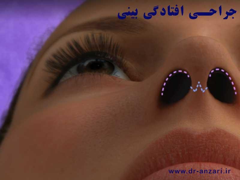 انیمیشن جراحی افتادگی بینی