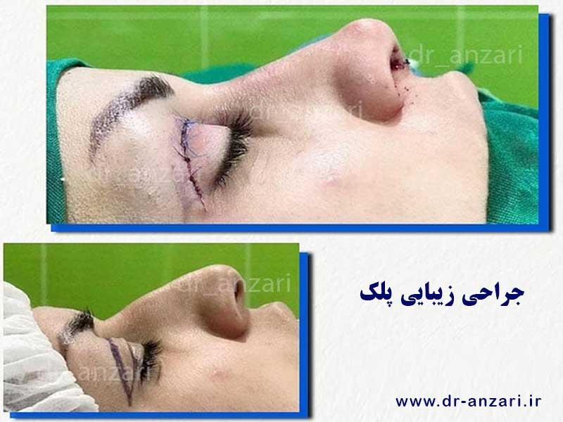 جراحی زیبایی پلک در اردبیل