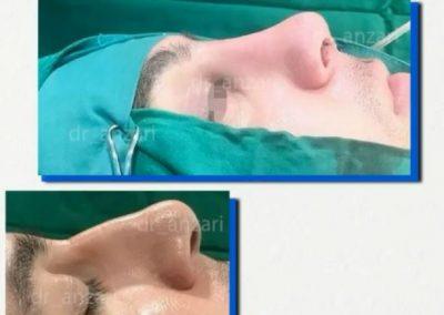 دکتر انظاری و جراحی بینی