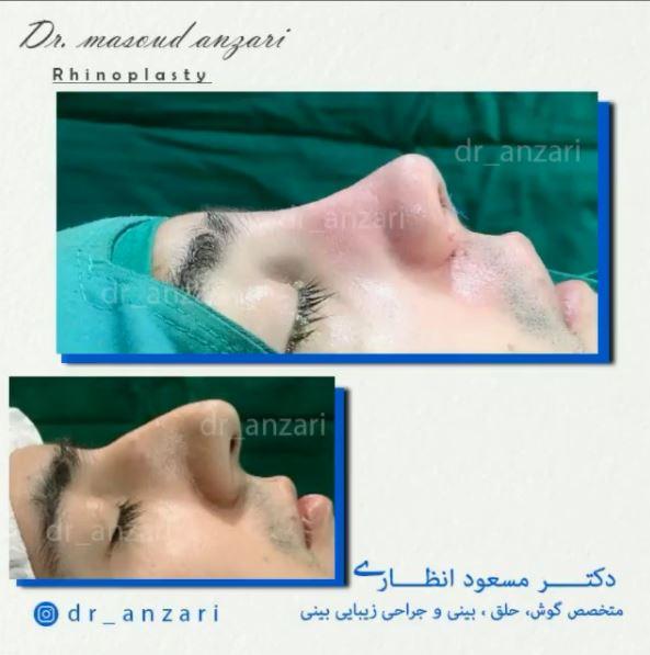 نمونه جراحی بینی توسط دکتر انظاری