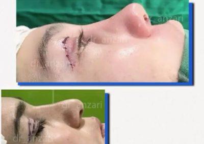 نمونه کار دکتر انظاری عمل بینی
