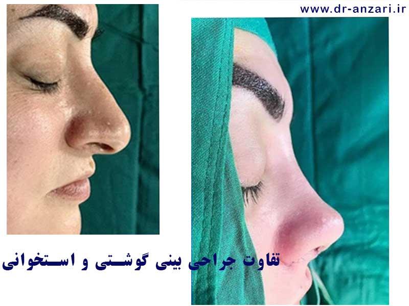 بینی گوشتی و جراحی در اردبیل