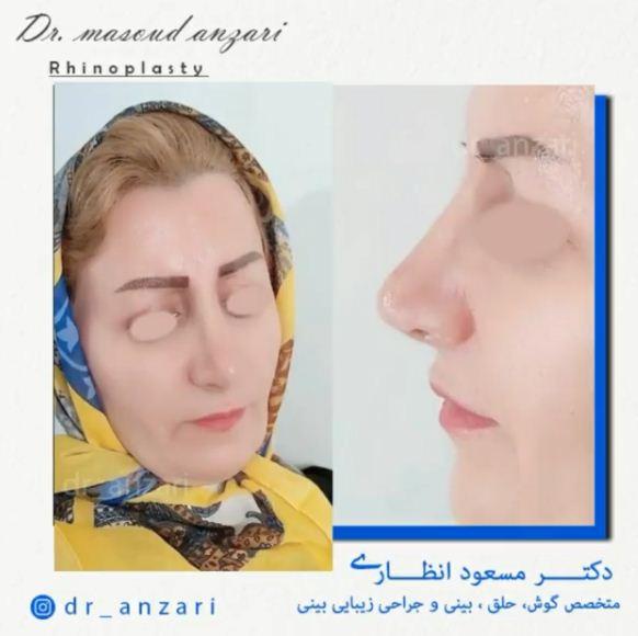 جراحی بینی در مادران