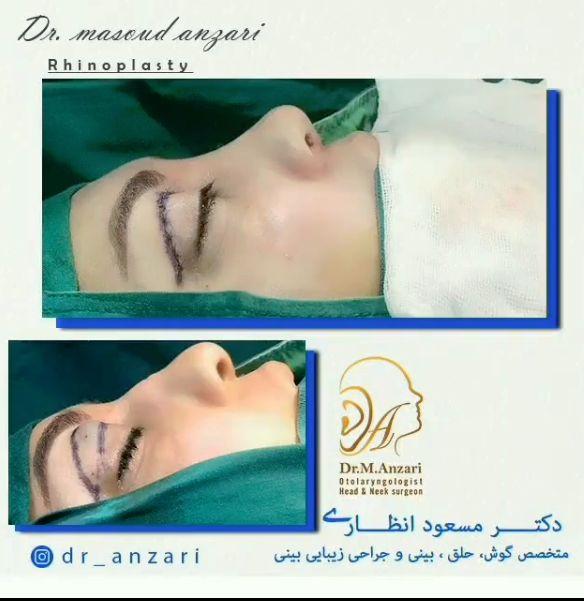 عمل بینی با جراحی زیبایی پلک همزمان