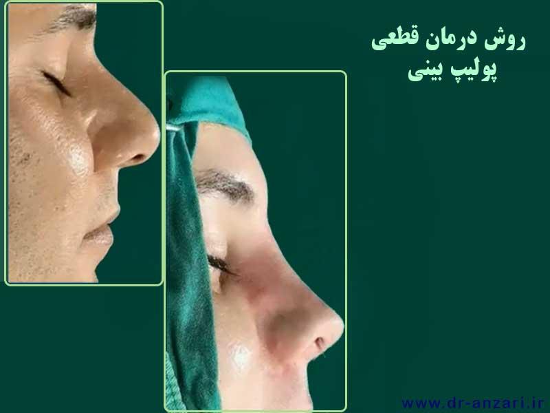 جراحی پولیپ بینی در اردبیل