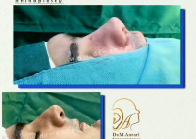 جراحی بینی دکتر انظاری در اردبیل
